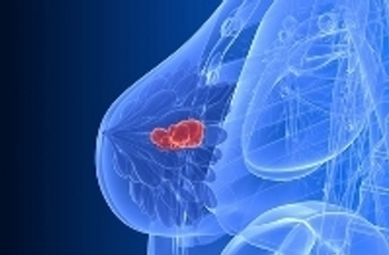 Disovery of genetic variations to better understand breast cancer