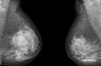 Quebec researchers and international collaborators identify a new breast cancer gene